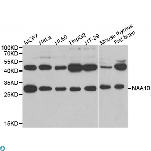 Buy Anti-NAA10 Antibody Online from St John Labs