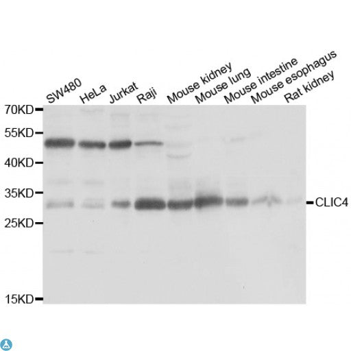 Buy Anti-CLIC4 Antibody Online from St John Labs
