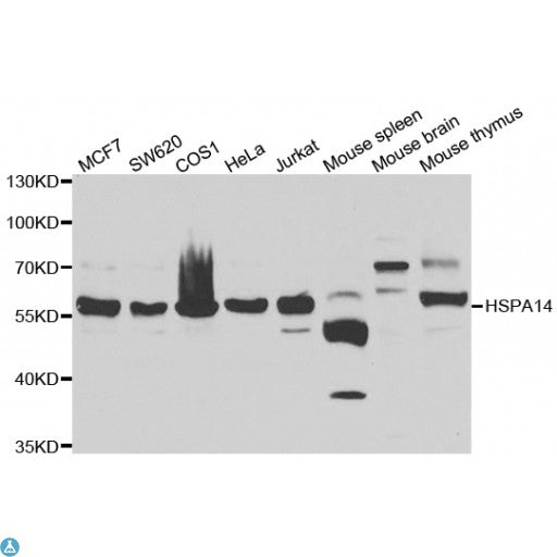 Buy Anti-HSPA14 Antibody Online from St John Labs