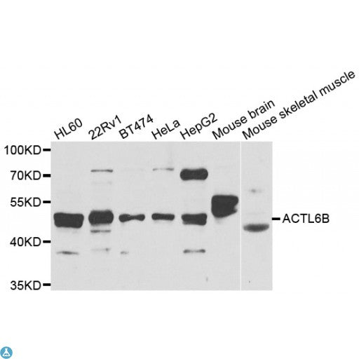 Buy Anti-ACTL6B Antibody Online from St John Labs