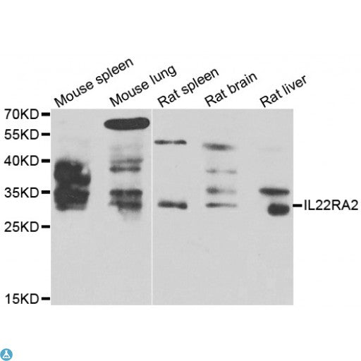 Buy Anti-IL22RA2 Antibody Online from St John Labs