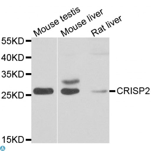 Buy Anti-CRISP2 Antibody Online from St John Labs