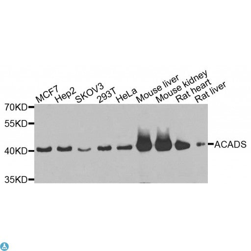 Buy Anti-ACADS Antibody Online from St John Labs