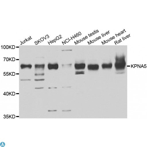 Buy Anti-KPNA5 Antibody Online from St John Labs