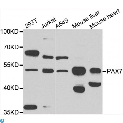 Buy Anti-PAX7 Antibody Online from St John Labs