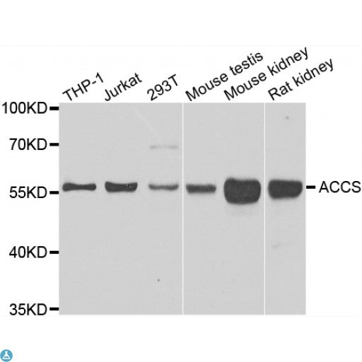 Buy Anti-ACCS Antibody Online from St John Labs