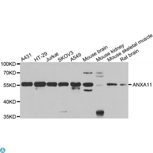Buy Anti-ANXA11 Antibody Online from St John Labs