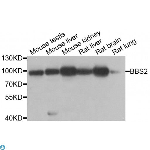 Buy Anti-BBS2 Antibody Online from St John Labs