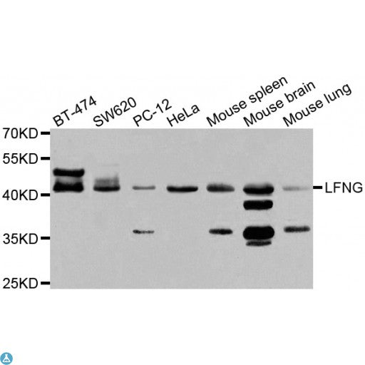 Buy Anti-LFNG Antibody Online from St John Labs