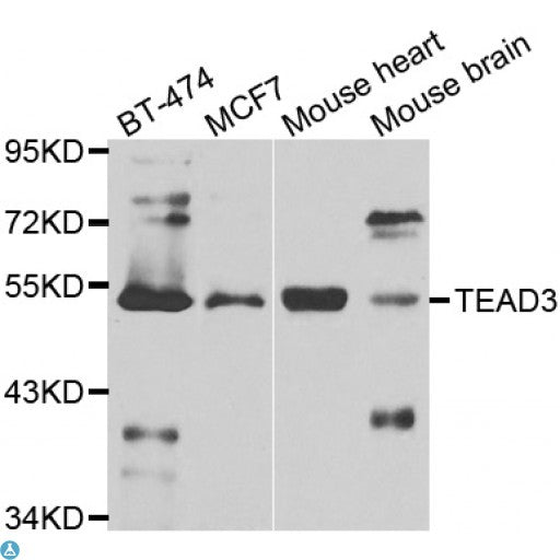 Buy Anti-TEAD3 Antibody Online from St John Labs