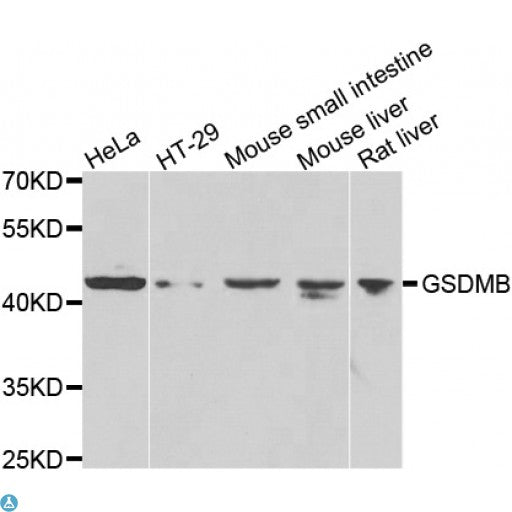 Buy Anti-GSDMB Antibody Online from St John Labs