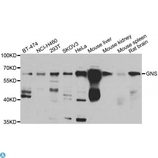 Buy Anti-GNS Antibody Online from St John Labs