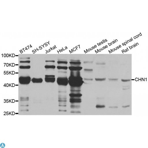 Buy Anti-CHN1 Antibody Online from St John Labs