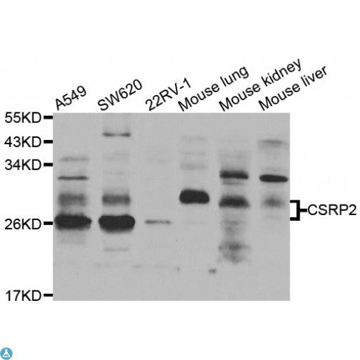 Buy Anti-CSRP2 Antibody Online from St John Labs
