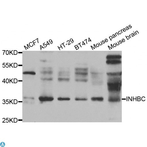 Buy Anti-INHBC Antibody Online from St John Labs