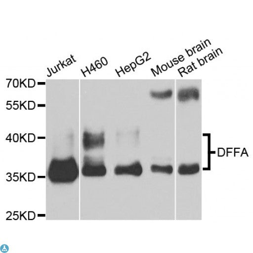 Buy Anti-DFFA Antibody Online from St John Labs