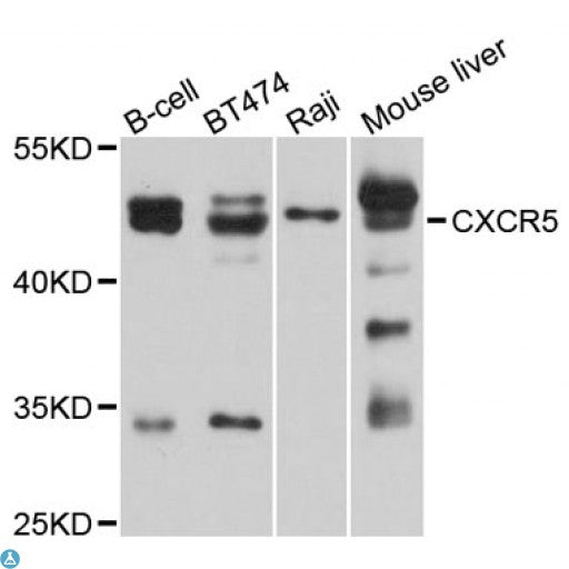 Buy Anti-CXCR5 Antibody Online from St John Labs