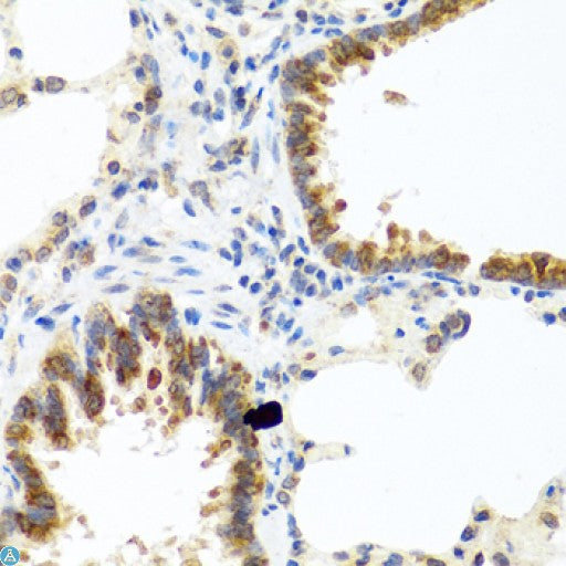 Buy Anti-C8orf4 Antibody Online from St John Labs