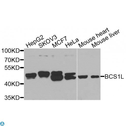 Buy Anti-BCS1L Antibody Online from St John Labs
