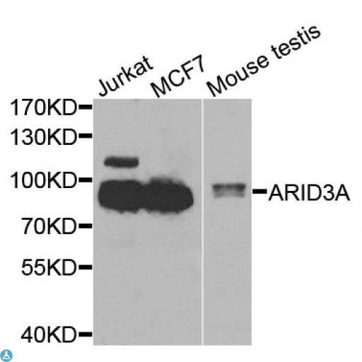 Buy Anti-ARID3A Antibody Online from St John Labs