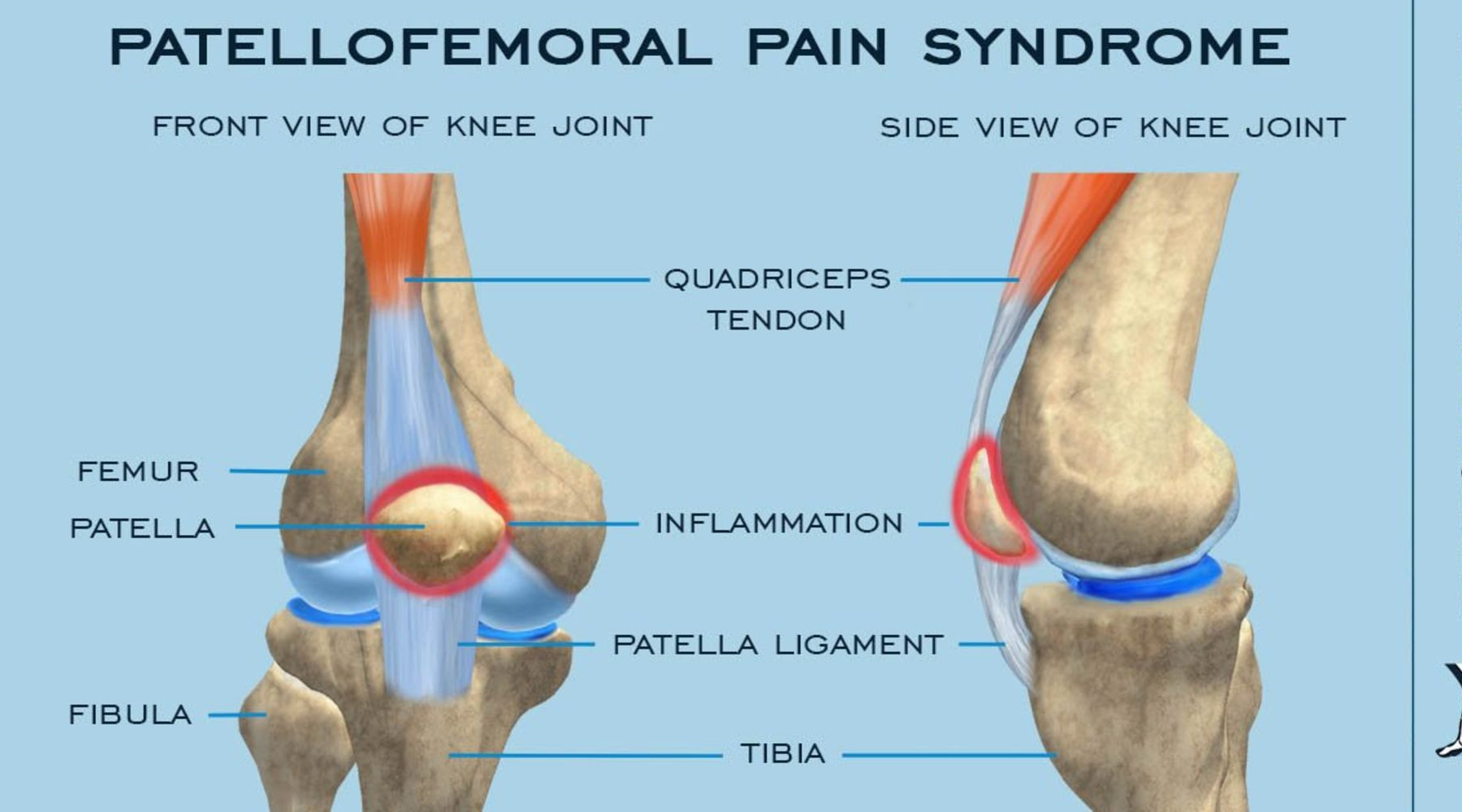 Weak in the knee? Maybe it's patellofemoral syndrome.