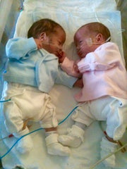 Baby twins born prematurely