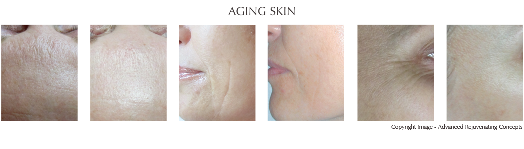 Aging Skin, Enlarged Pores, Rough Texture Clinical Evaluation Ultrasonic