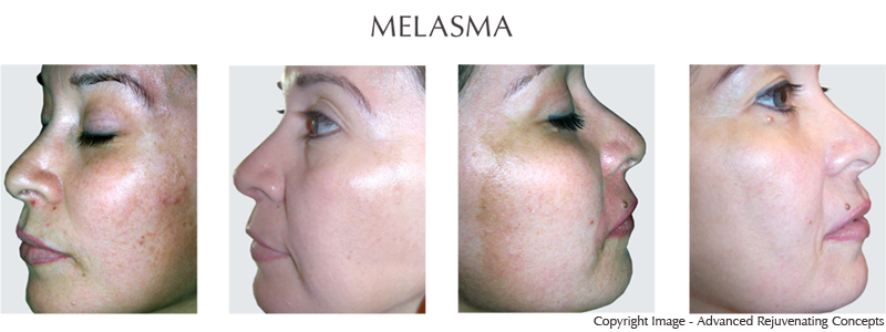Melasma Discolorations Clinical Evaluation of Lightening Products