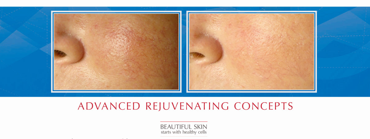 Before and After ARC Sensitive Skin Care Products