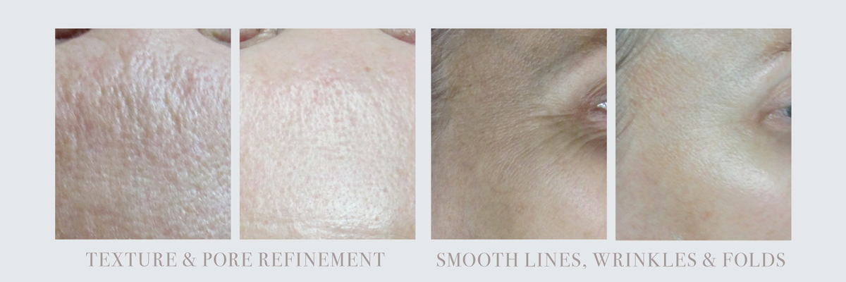 Before and After Ultrasonic Facial Rejuvenation