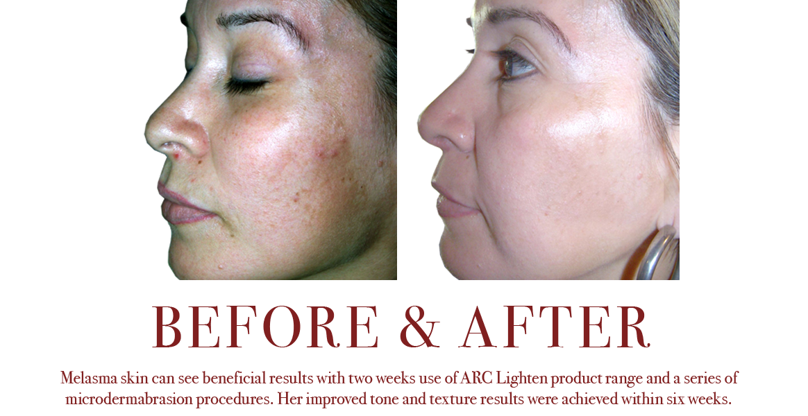 Lightening Melasma Mottled Skin Tone Discolorations