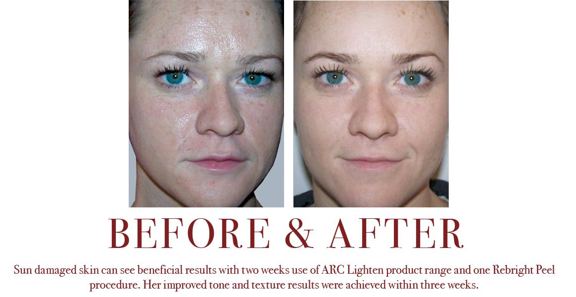 Lightening Results for Freckles, Discolorations and Age Spots