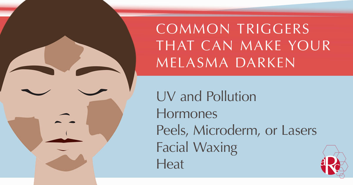 Melasma triggers and how you can stop them