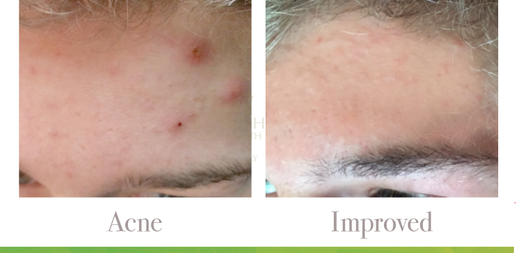 Acne - Before and after results with ARC