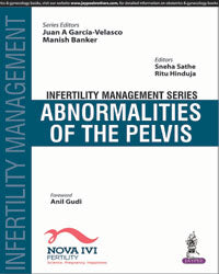 Infertility Management Series: Abnormalities of the Pelvis - ABC Books
