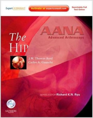 AANA Advanced Arthroscopy: The Hip ** - ABC Books