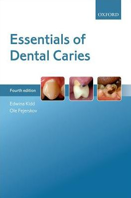 Essentials of Dental Caries 4/e - ABC Books