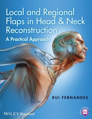 Local and Regional Flaps in Head & Neck Reconstruction: A Practical Approach - ABC Books