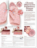 Chronic Obstructive Pulmonary Disease Chart 2E - ABC Books