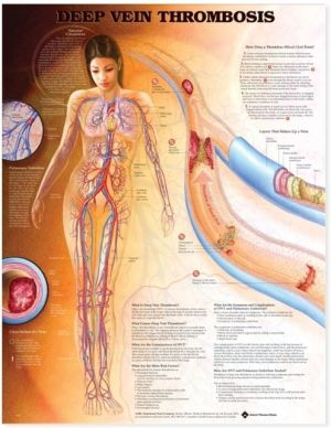Deep Vein Thrombosis Chart - ABC Books