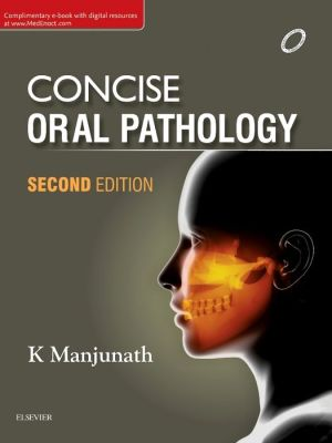 Concise Oral Pathology, 2e