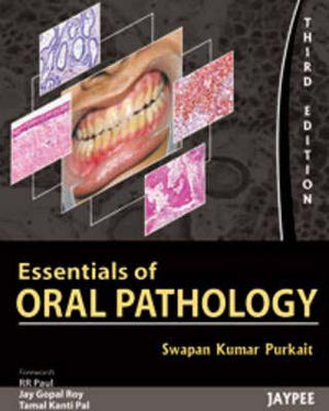 Essential of Oral Pathology