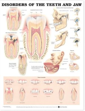 Disorders of the Teeth and Jaw Chart - ABC Books