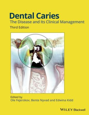 Dental Caries: The Disease and its Clinical Management, 3rd Edition - ABC Books