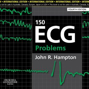 150 ECG Problems, 4e - ABC Books