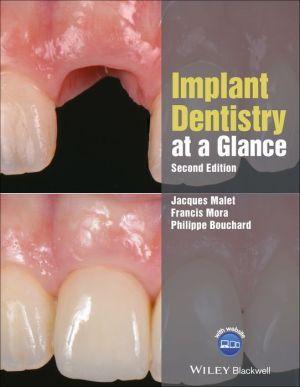 Implant Dentistry at a Glance, 2nd Edition - ABC Books