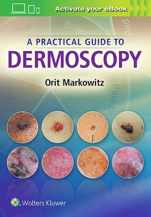 A Practical Guide to Dermoscopy - ABC Books
