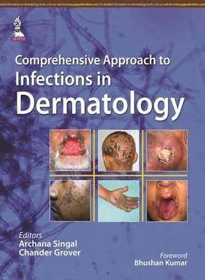 Comprehensive Approach to Infections in Dermatology - ABC Books