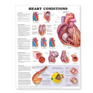 Heart Conditions Chart - ABC Books