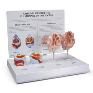 COPD Model with bronchus and alveoli - ABC Books